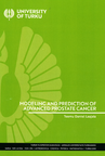Modeling and prediction of advanced prostate cancer
